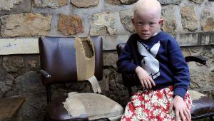 Zambiya'da albino çocuğun eli