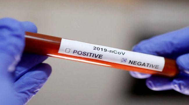 Koronavirüsten ölen bazı hastaların test sonucu nasıl negatif çıkıyor?