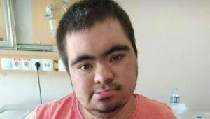 Down sendromlu genç Kovid-19'dan hayatını kaybetti