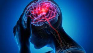 Beyin pillerinin yerini Musk çipi mi alacak!
