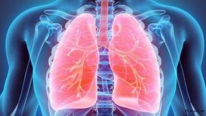 Akciğer kanseri vakaları arttı